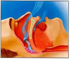 Aparat pentru tratarea Sindromului de Apnee in